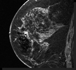 SagittalMRI